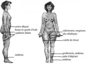 Cellulite chez la femme