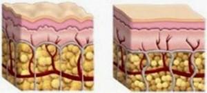 La peau cellulite